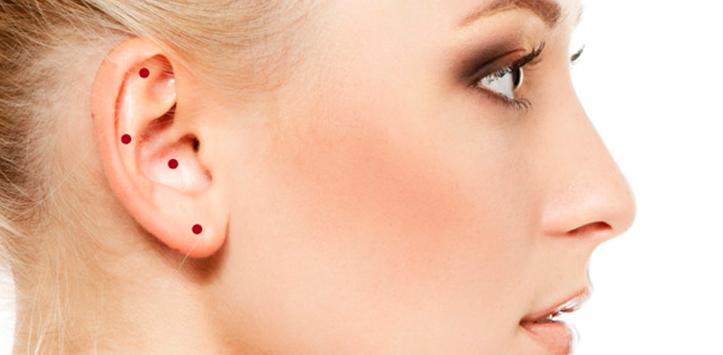 Terapia para adelgazar con acupuntura